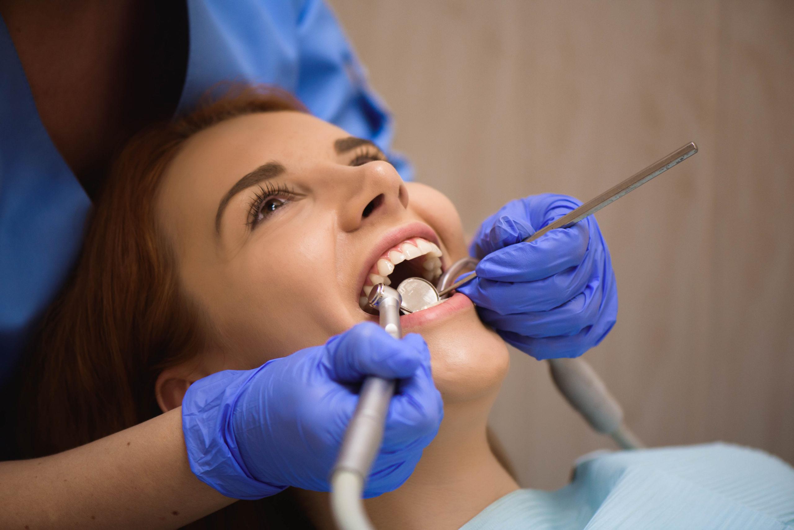 Eliminar manchas negras en los dientes